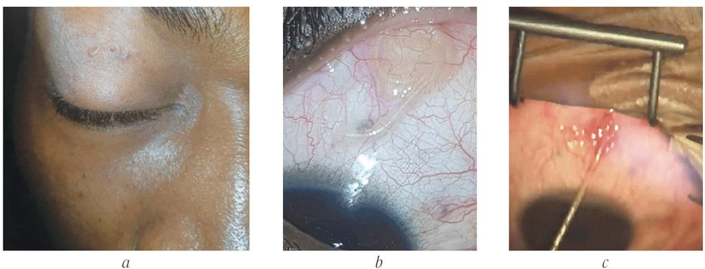 dirofilaria parazita